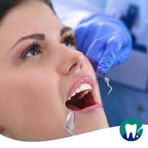 I sintomi della parodontite: mobilità dentale, ascessi e alitosi