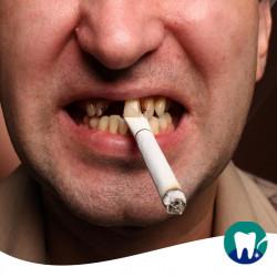 Fumo e parodontite